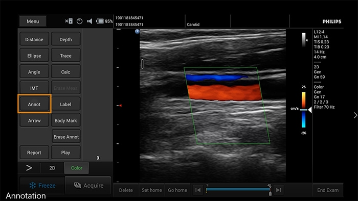 how to videos clinical image annotation