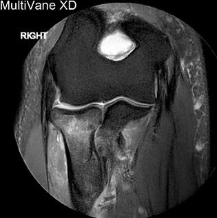 Motion reduction in shoulder MRI - FieldStrength MRI